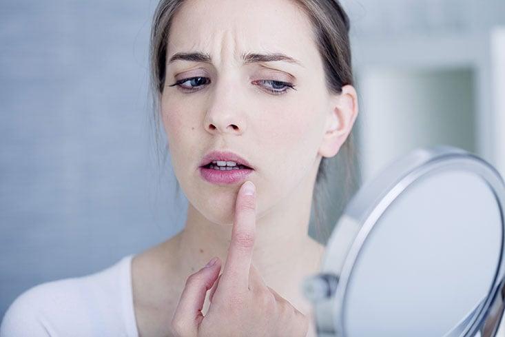 Los errores más habituales a la hora de tratar un herpes labial