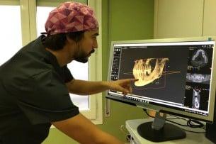 Las claves de la pérdida ósea dental