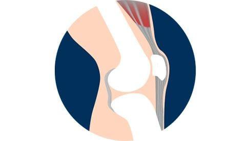 ¿Qué es y cómo se trata  la tendinitis rotuliana?