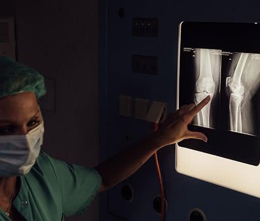 Radiografía de un paciente con artrosis severa