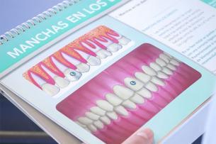 Por qué se desmineraliza el esmalte dental